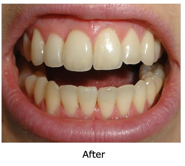 Female Invisalign Age 25-30 After