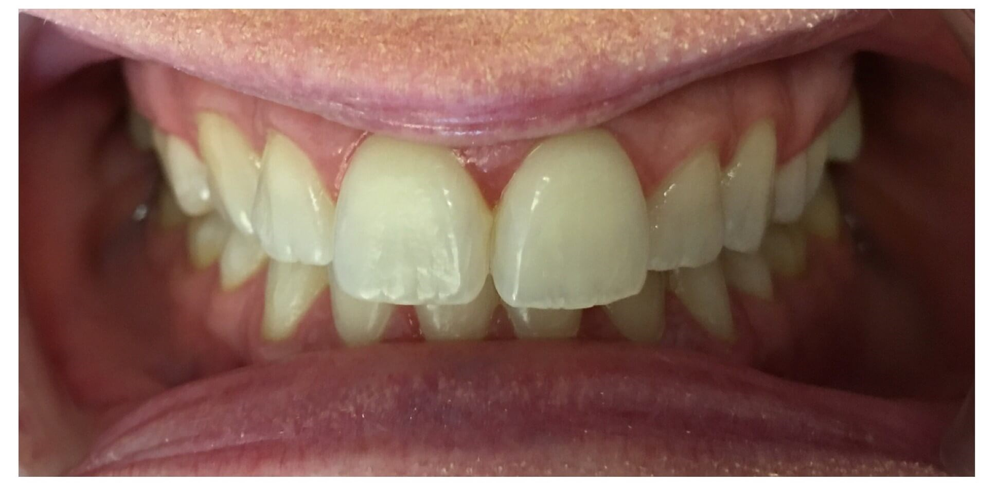 Dental Bonding & Recontouring Before