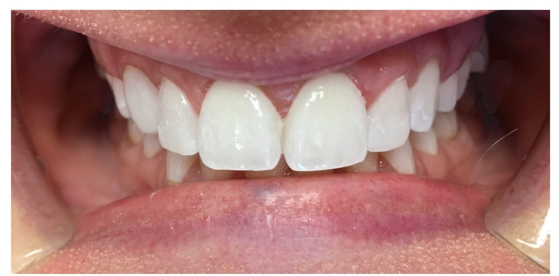 Dental Bonding & Recontouring After