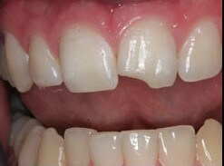 Chipped Tooth Before
