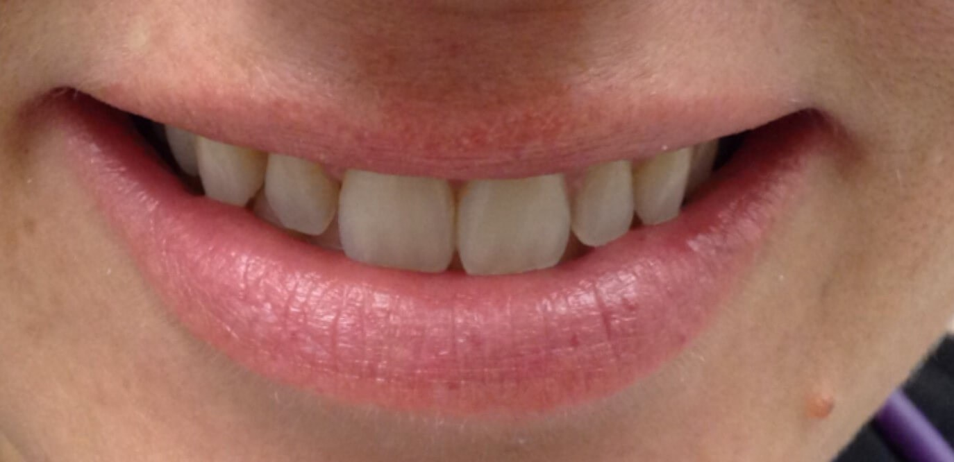 Veneers Mini Makeover Before