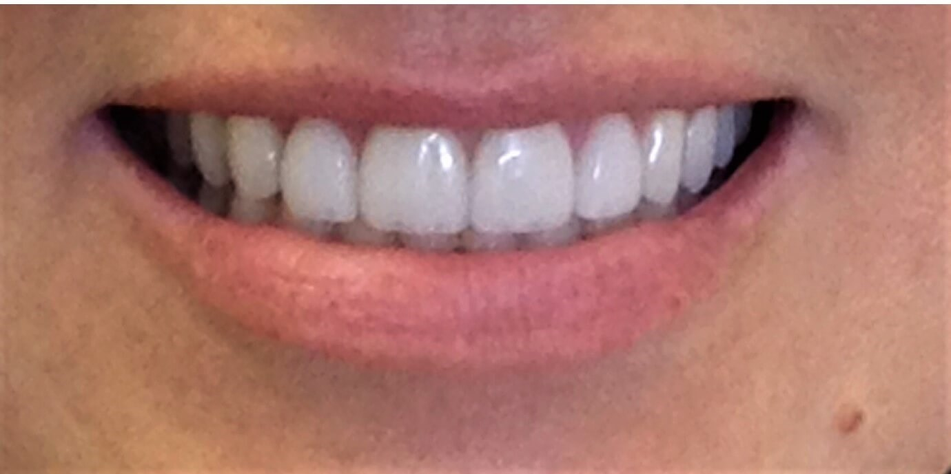 Veneers Mini Makeover After