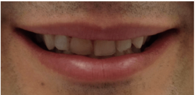 NY Male Porcelain Veneers Before