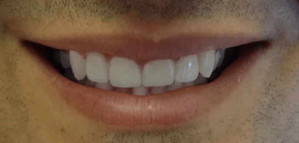 NY Male Porcelain Veneers After