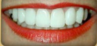 Smile Lift with Veneers After