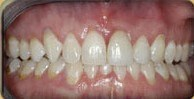 Straight teeth w/Invisalign NY After