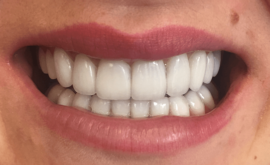 NYC SmileMakover Patient After