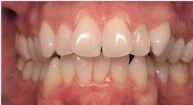 33 yr old NYC Girl Invisalign Before