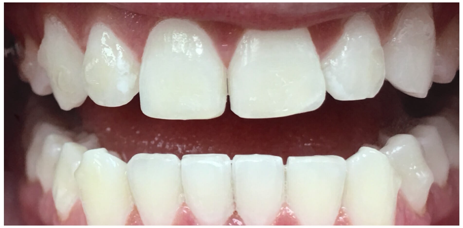 Whiten & Brighten After Ortho After