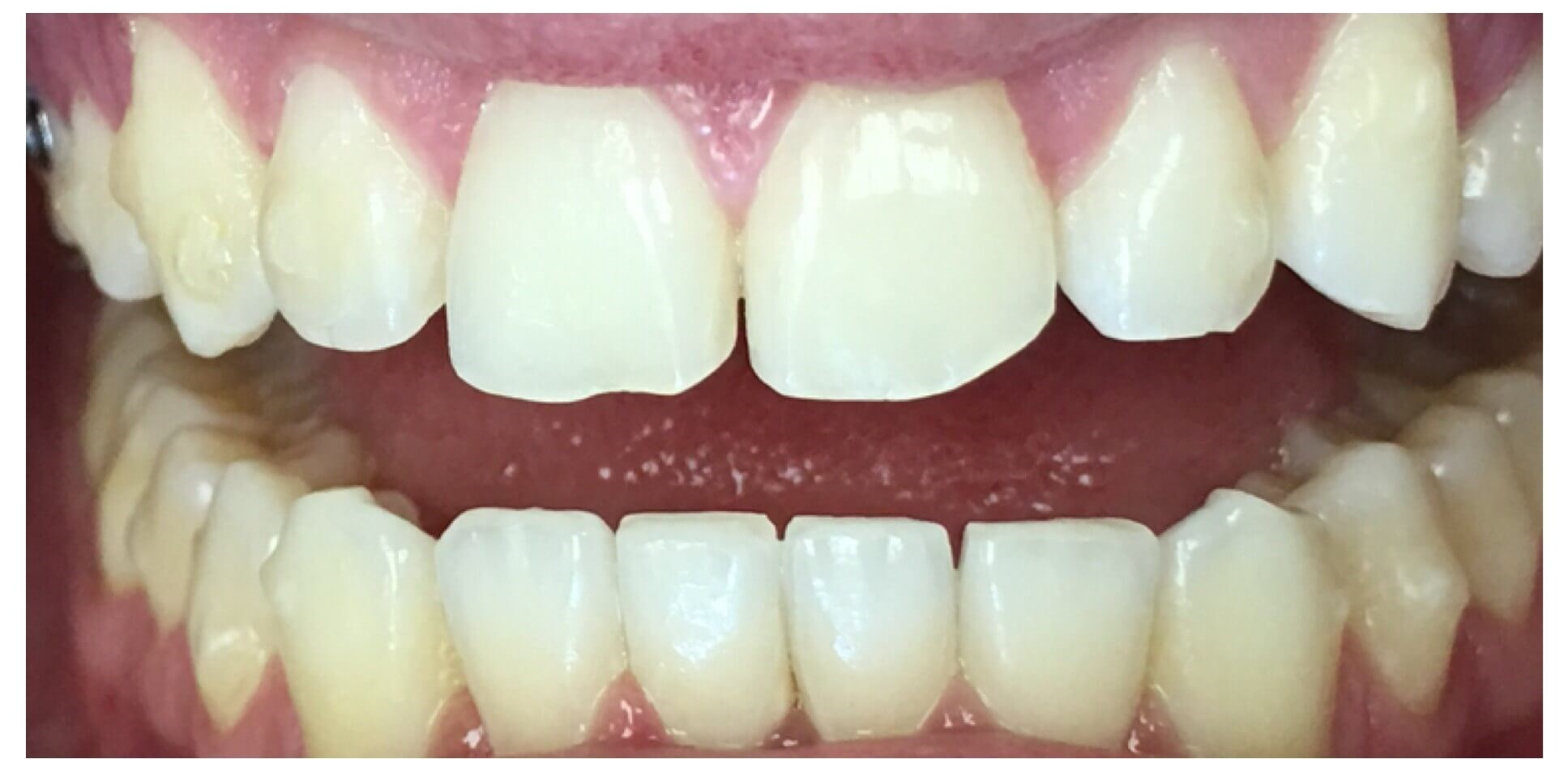 Whiten & Brighten After Ortho Before