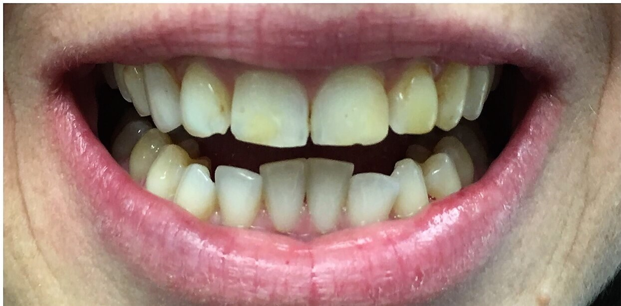50 yr old get new smile Before