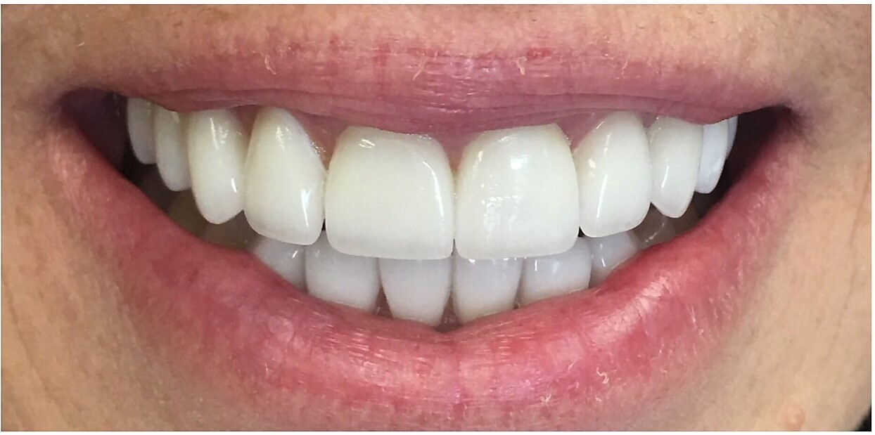 50 yr old get new smile After