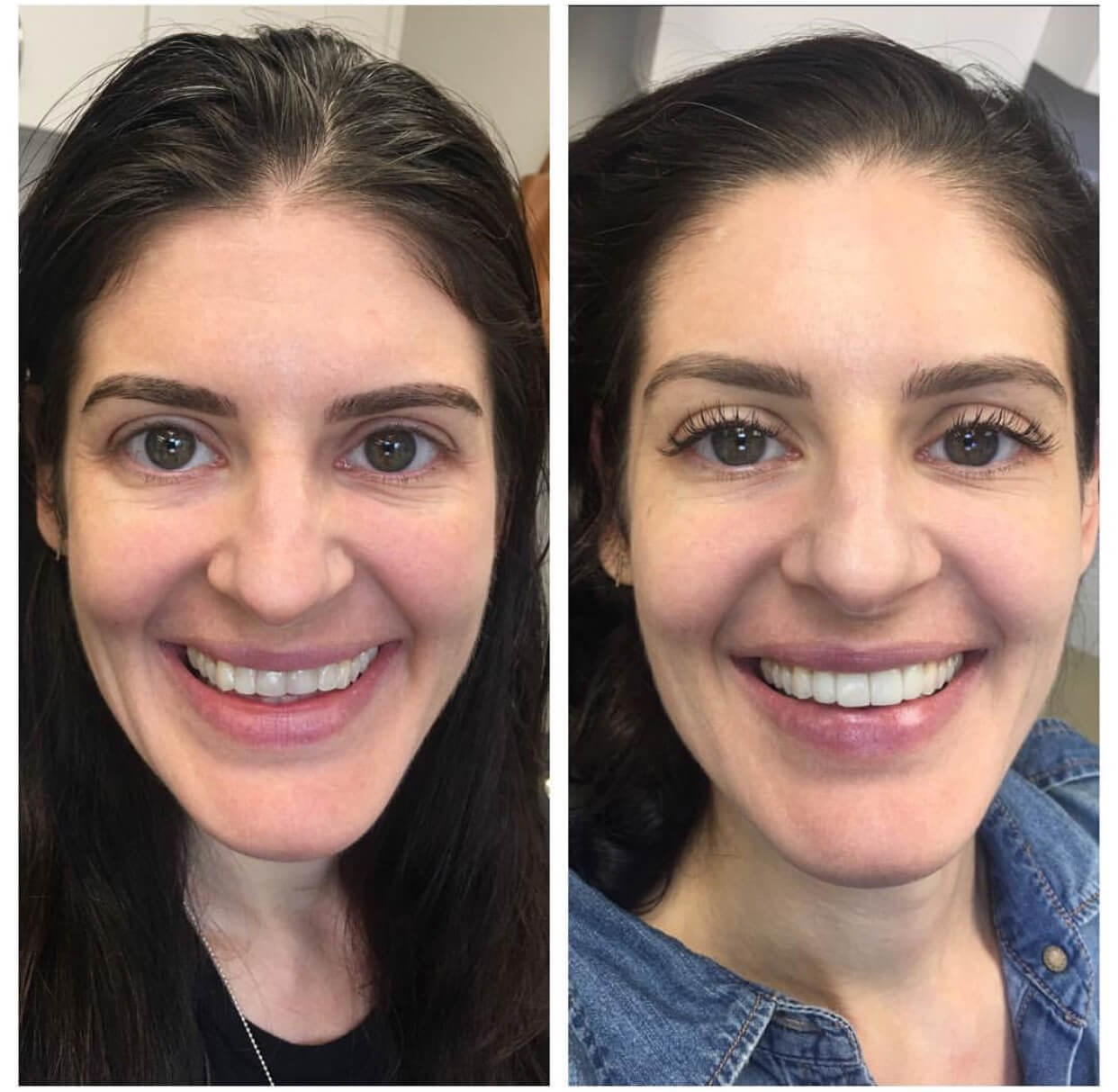 4 Veneers Smile Makeover Before