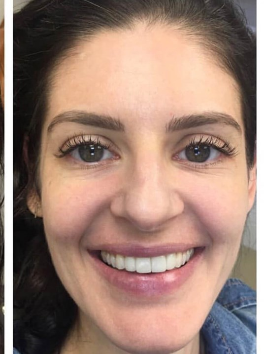 4 Veneers Smile Makeover After