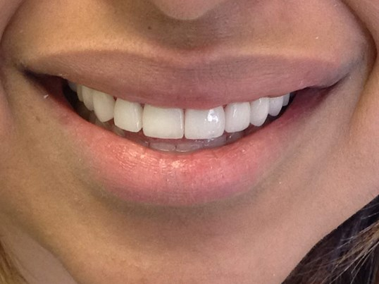 10 Porcelain Veneers After