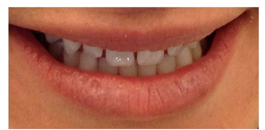 10 Porcelain Veneers Before