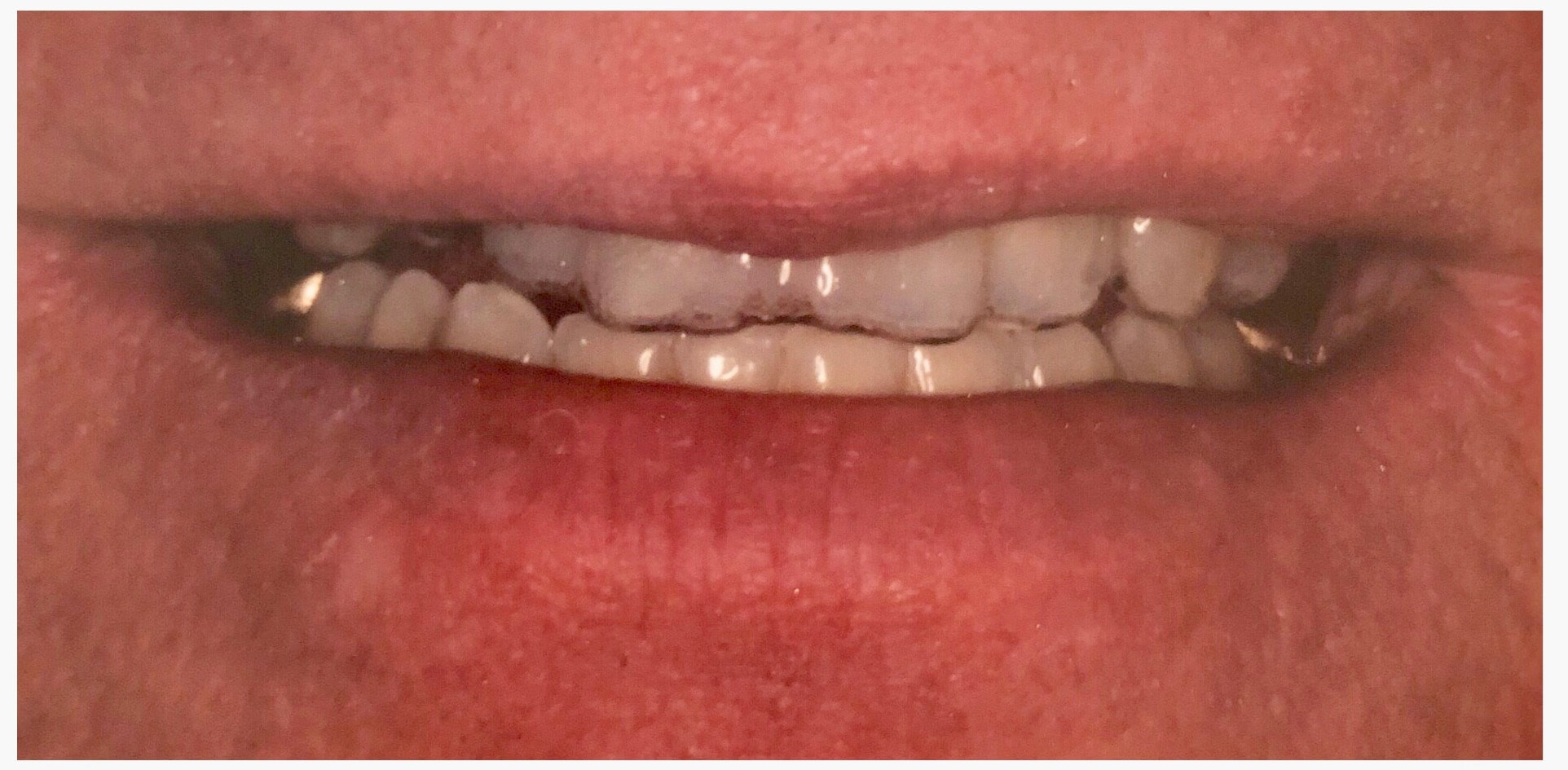 69 y.o. Male Smile Makeover Before