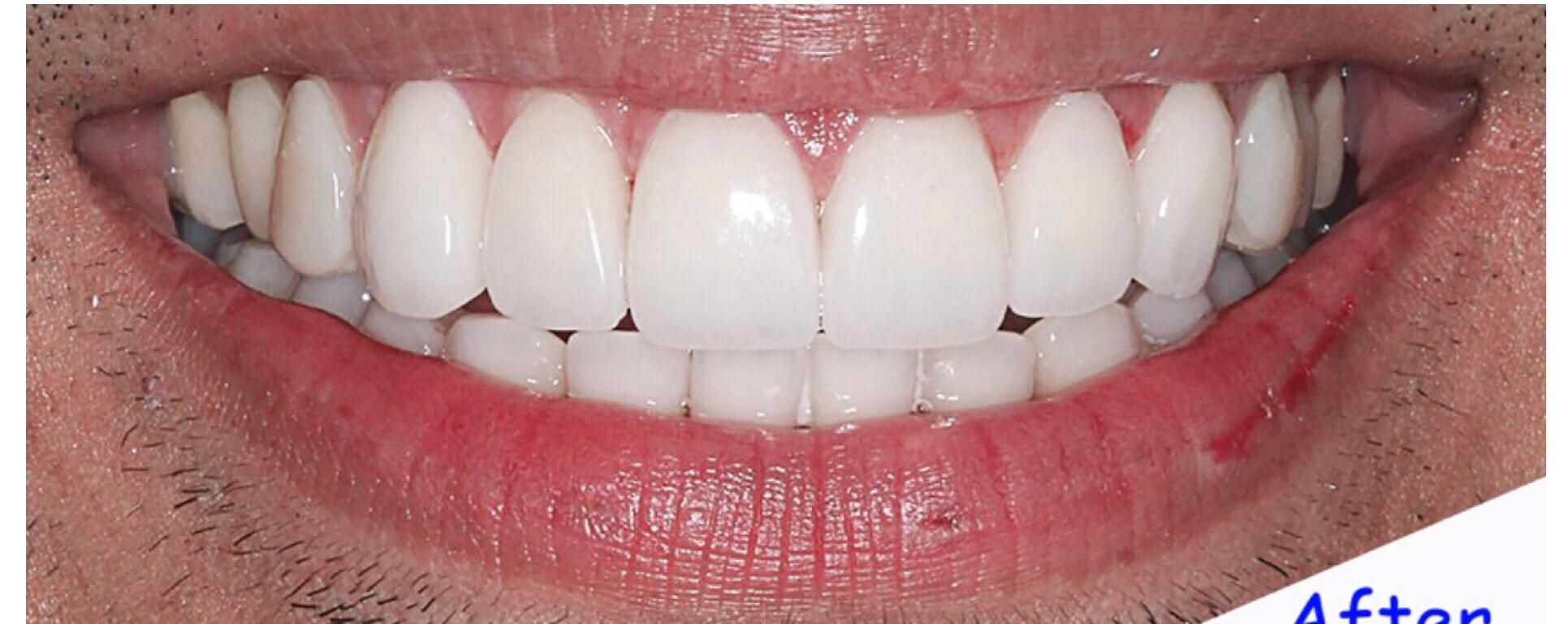 Smile Makeover with Veneers After