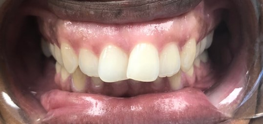 4 Veneer Smile Makeover Before