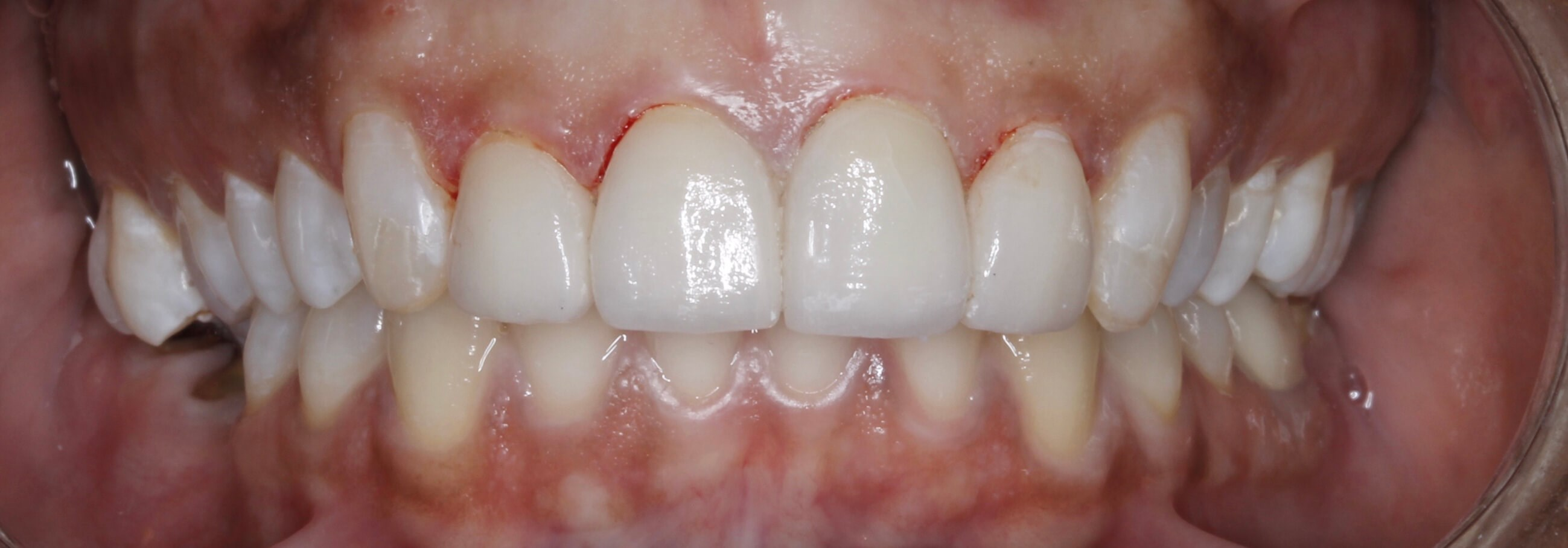 4 Veneer Smile Makeover After