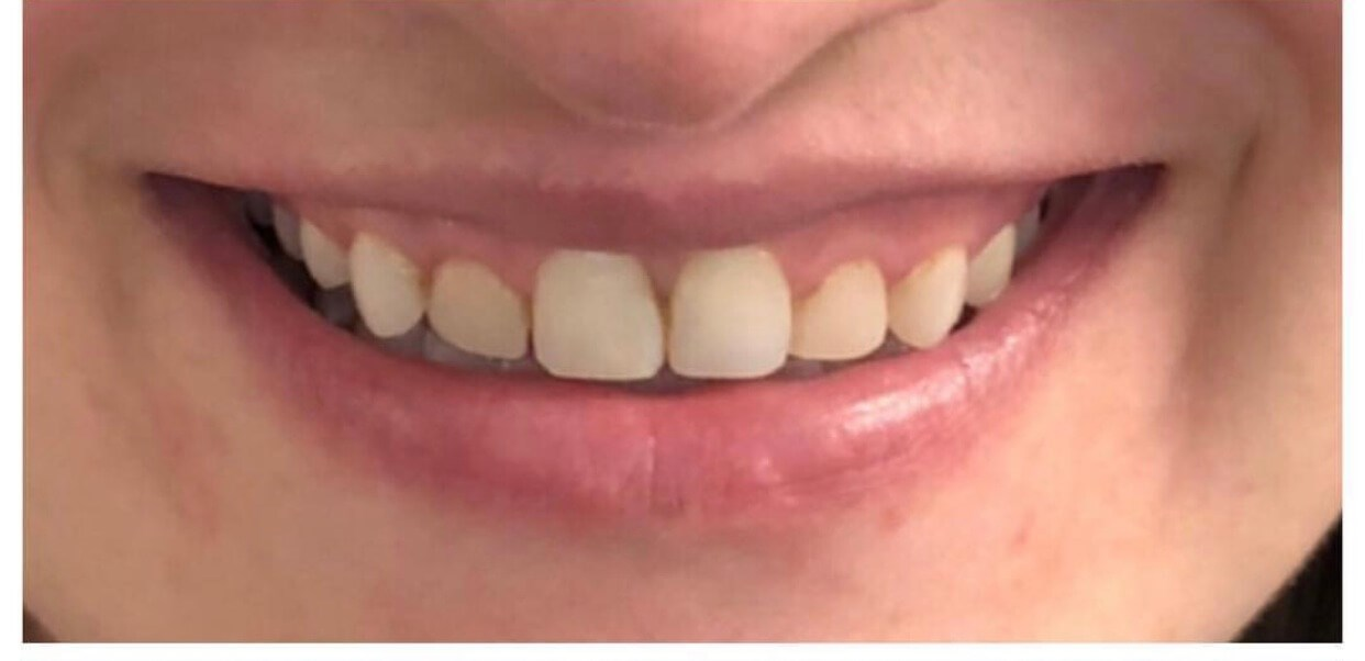 10 Veneer Smile Makeover Before