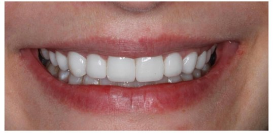 10 Veneer Smile Makeover After