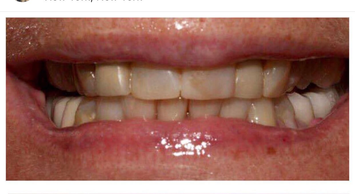 28 porclain crowns/veneers Before