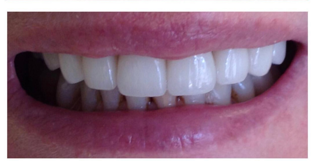 28 porclain crowns/veneers After