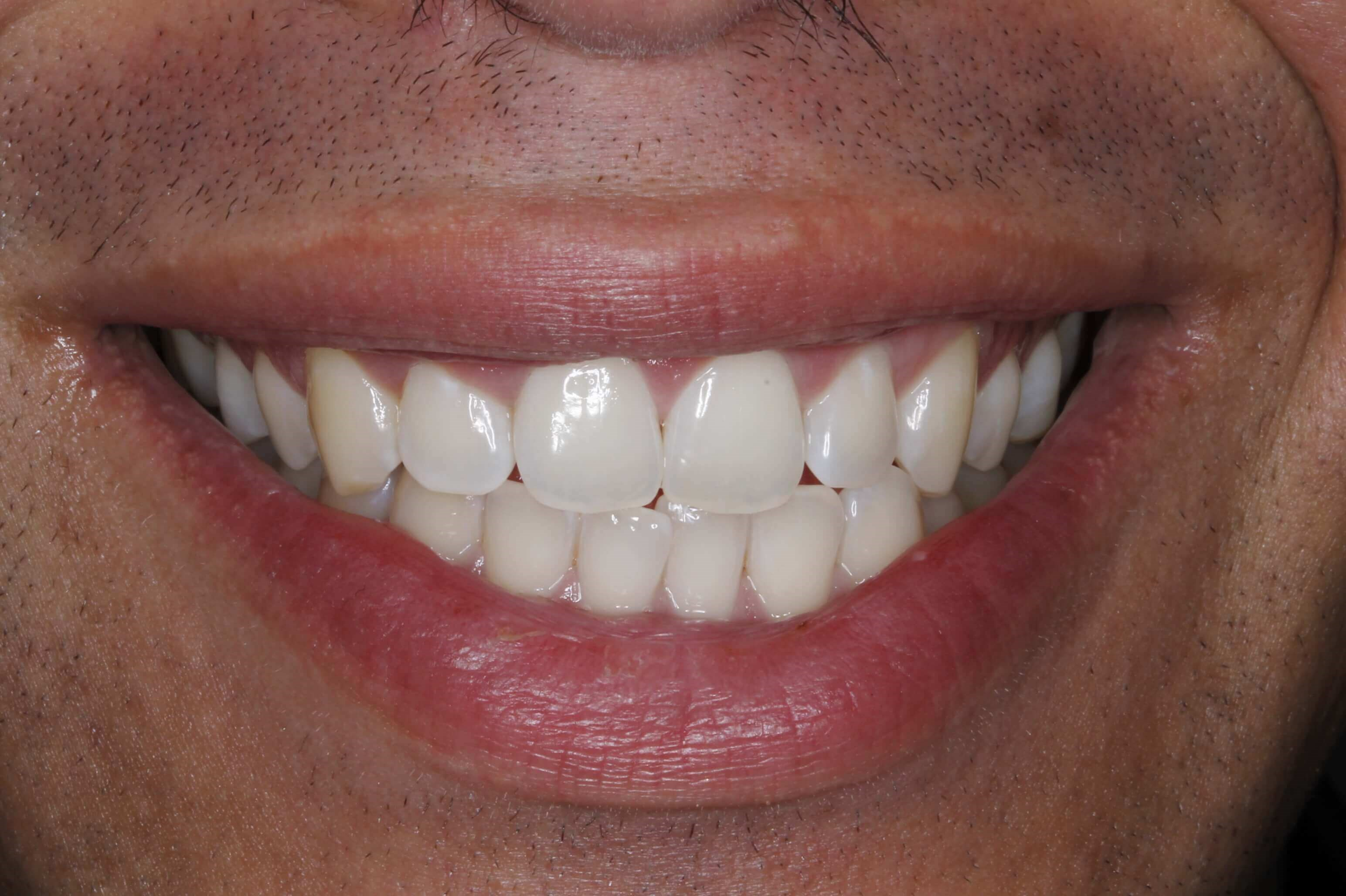 Male Smile MakeOver Before