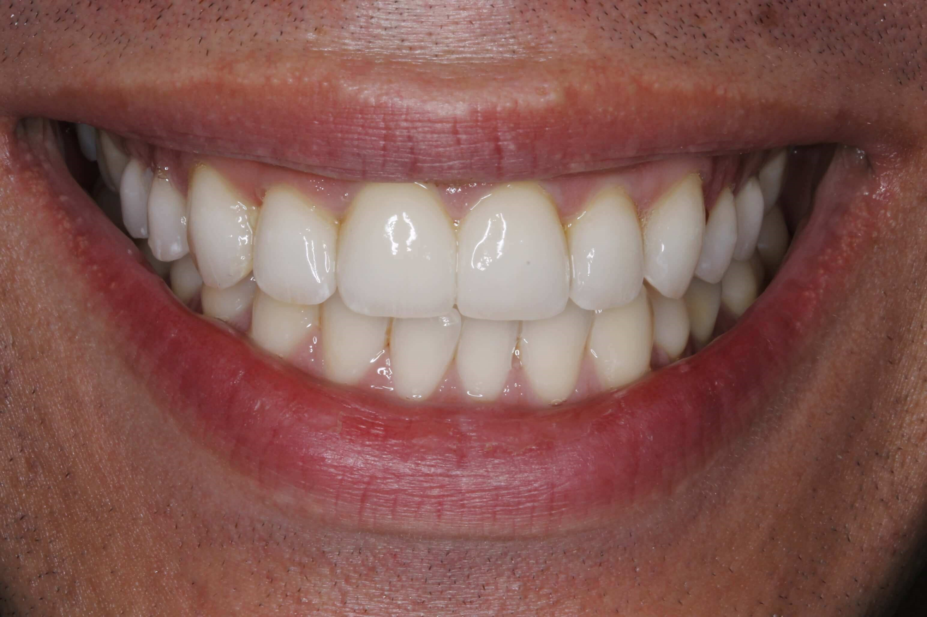 Male Smile MakeOver After