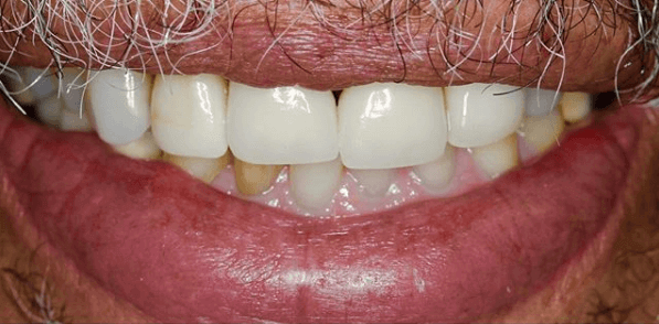 Youthful Porcelain Veneers Before