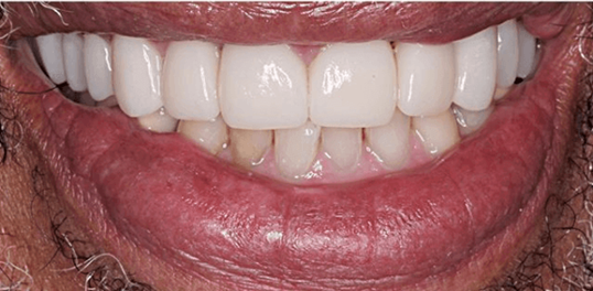 Youthful Porcelain Veneers After
