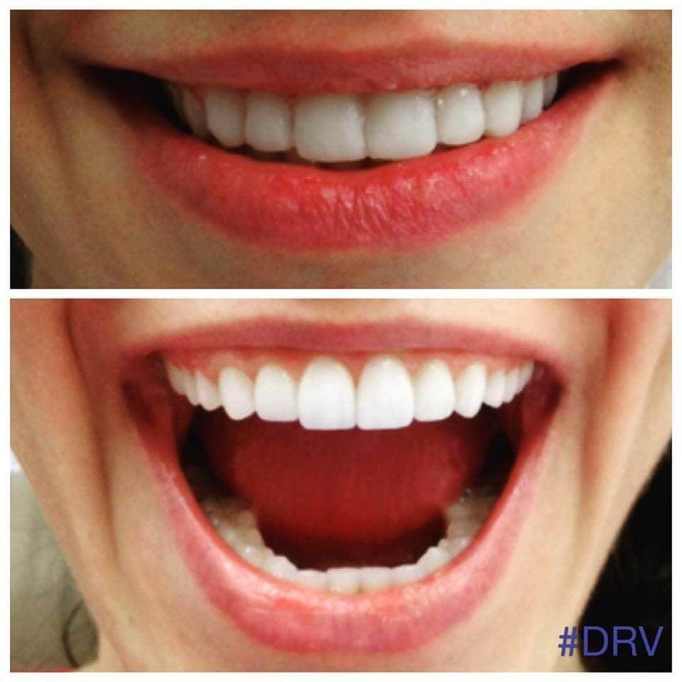 Dr. Veytsman: Porcelain Veneers Mimic A Natural Smile To Enhance